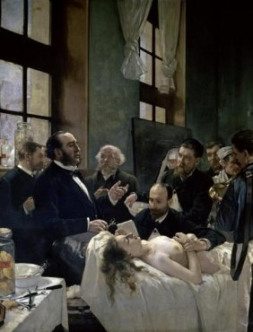 """HENRI GERVEX  """"DOCTOR PREAU OPERATING AT THE ST."""